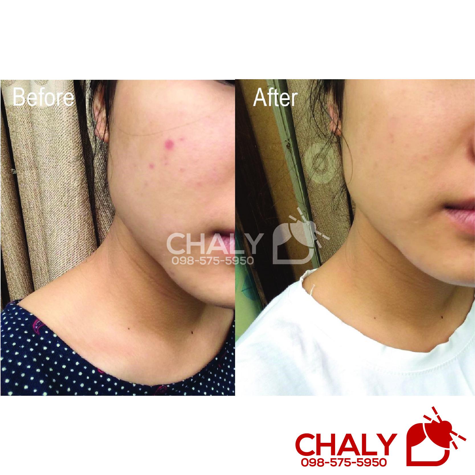 Em Rohto cc melano serum này dùng trên da mình rất hợp, trị thâm và ngừa mụn tốt vô cùng luôn