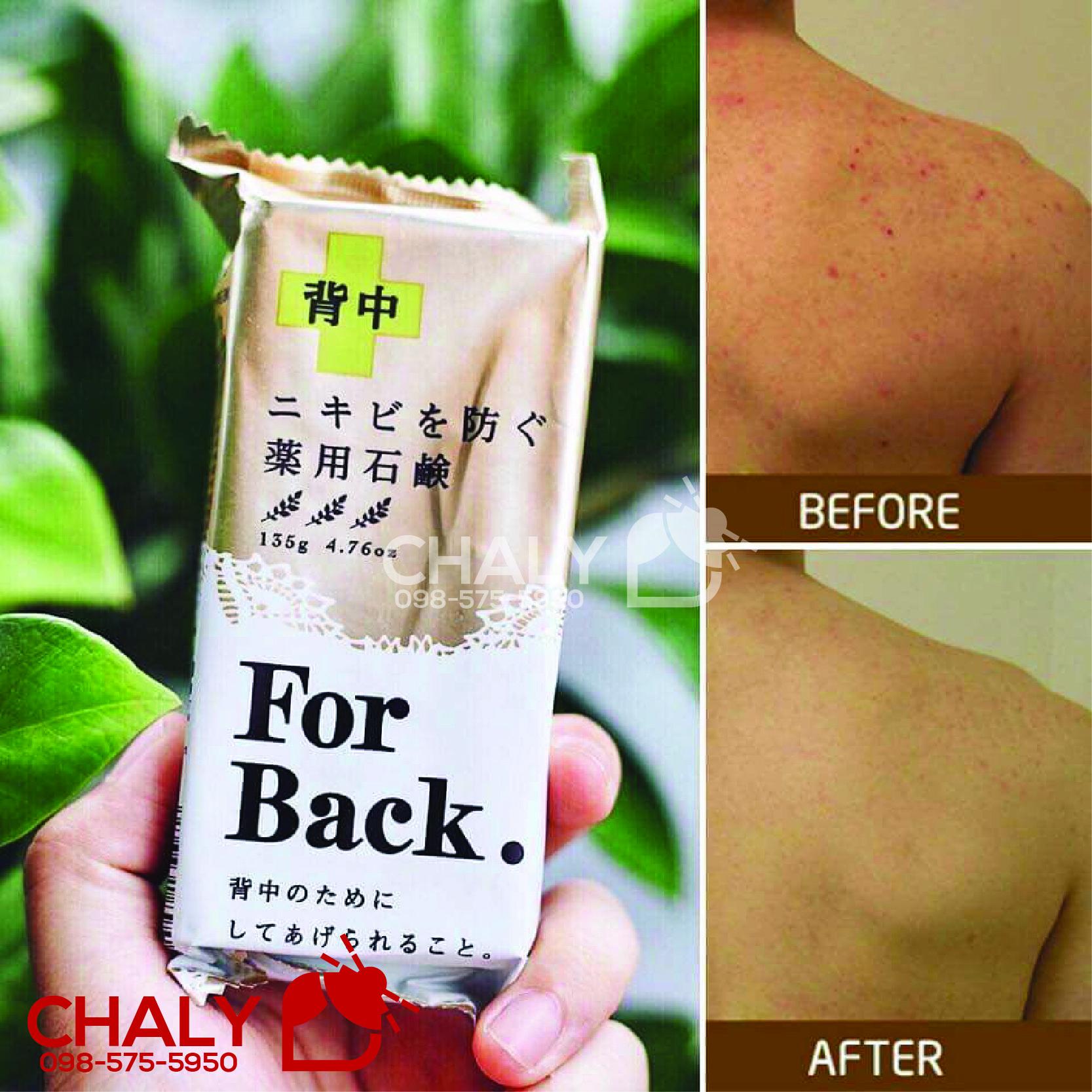 Xà phòng trị mụn lưng For Back là sản phẩm đặc trị mụn lưng số 1 Nhật Bản. Hiệu quả cao, bán siêu chạy