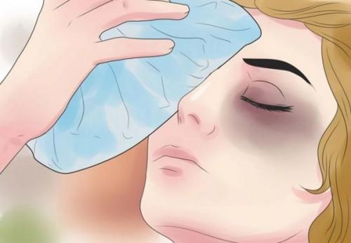Chườm đá lạnh giúp trị quầng thâm mắt