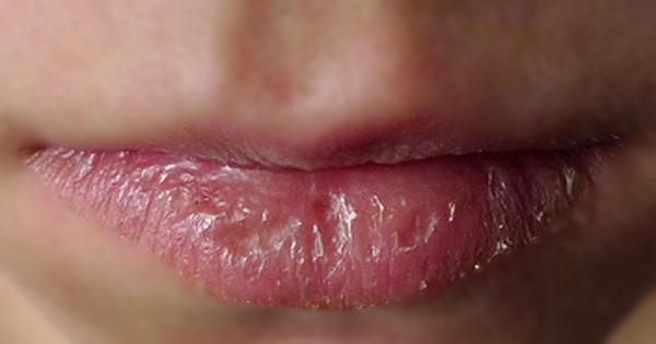 Vì sao mà môi lại nứt nẻ ?