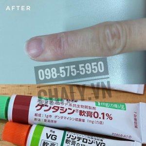 Vùng da viêm sần, có sẹo cứng được trị khỏi nhờ thoa kem Gentacin 0.1%