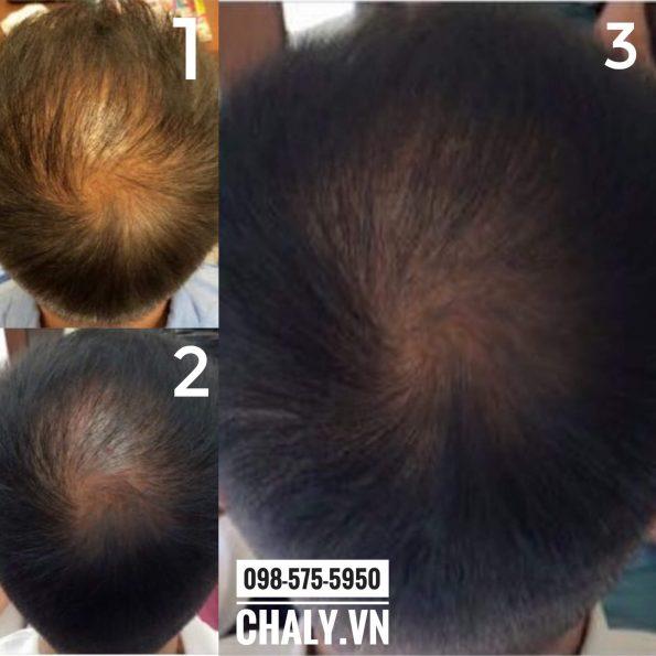 Review của người Nhật khi dùng Yanagiya Hair Tonic