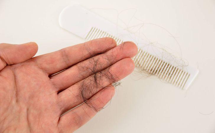 Xịt Molty giúp giảm rụng tóc hiệu quả. Chai màu đỏ 130ml dược tính mạnh phù hợp với trường hợp hói nhẹ