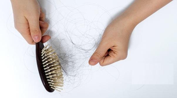 Xịt trị rụng tóc và kích mọc tóc Molty giúp trị dứt điểm tình trạng rụng tóc như thế này