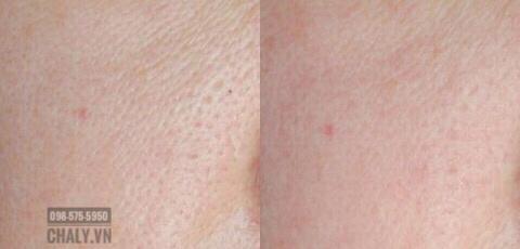 Trước và sau khi đắp mặt nạ se khít lỗ chân lông cho da nhờn SQS Nhật