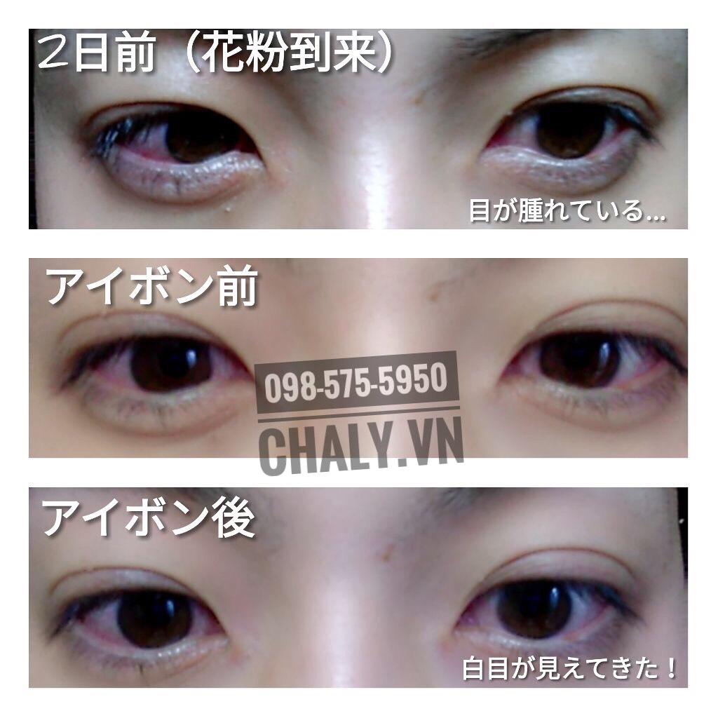 Dùng thuốc rửa mắt của Nhật Eyebon W Vitamin chỉ 1 ngày giúp trị khỏi ngay tình trạng viêm mắt do dị ứng phấn hoa