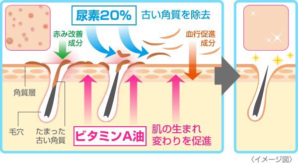 Kem trị viêm nang lông của Nhật Rohto Zaraporo A hiệu quả vì một lúc thực hiện nhiều công năng từ làm thông lỗ chân lông, tiêu diệt ổ viêm tới kích thích tuần hoàn máu, sinh trưởng tế bào mới ..
