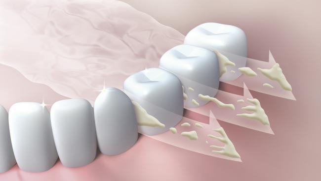 Nước xịt miệng Ora lách qua kẽ răng và chân răng, làm sạch vi khuẩn, mảng bám thức ăn, đánh bay mùi hôi miệng